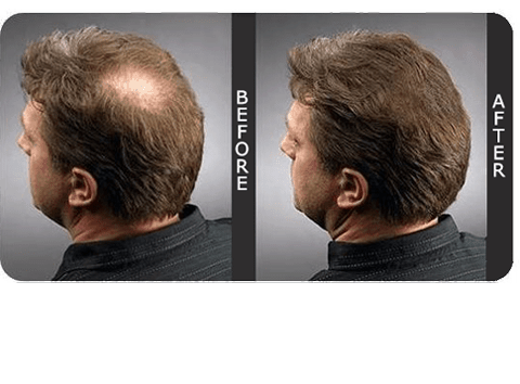 Before and After Male