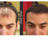 Male with thinning hair, Before and After image